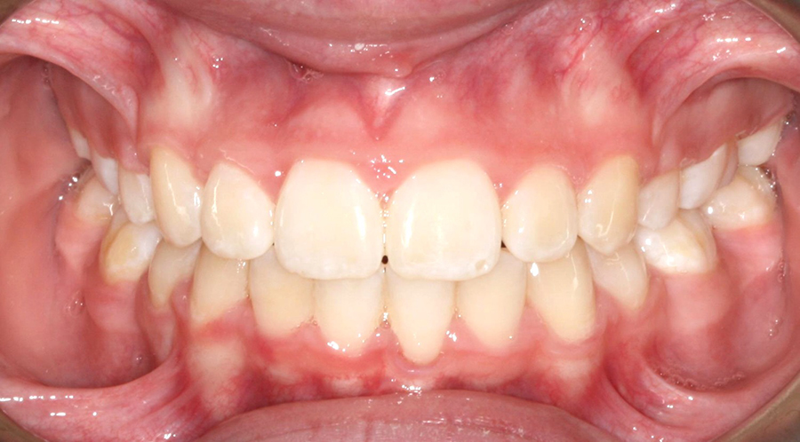 Before and After Photos - Orthodontic Treatment